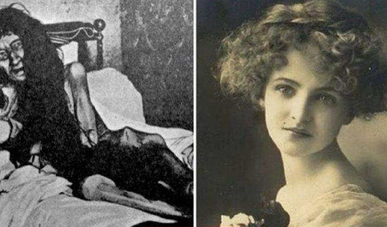Sosyetik Annesi Tarafından 25 yıl Bir Odaya Hapsedilen Blanche Monnier